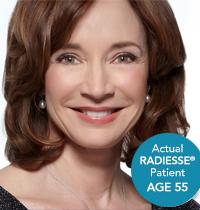 Actual Radisse Lady