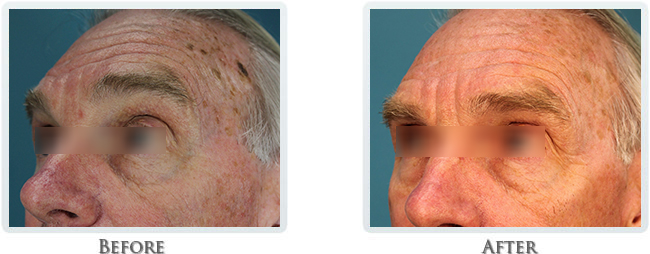 Sun & Brown Spot Removal Before and After 02