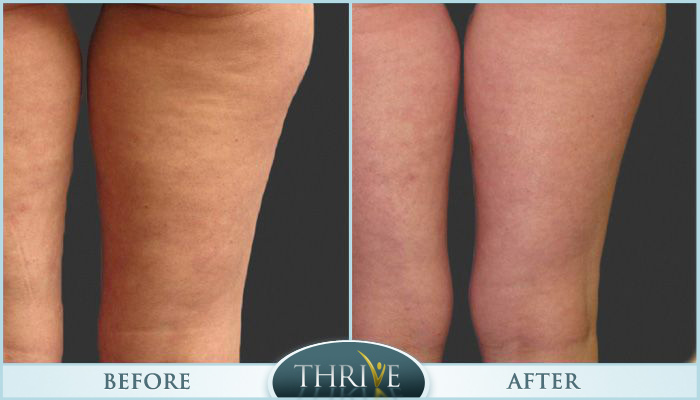 Cellulite Reduction Before and After 01