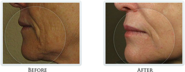 Wrinkle Reduction Before and After 01