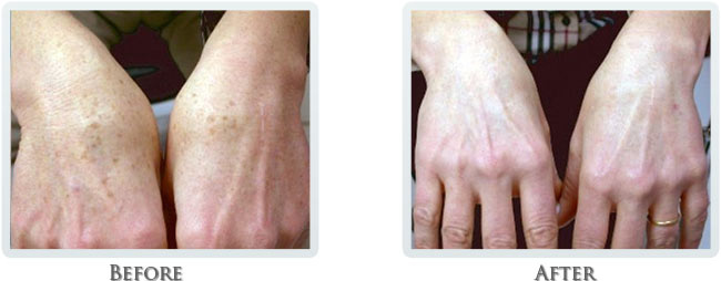 Hand Rejuvenation Before and After 01