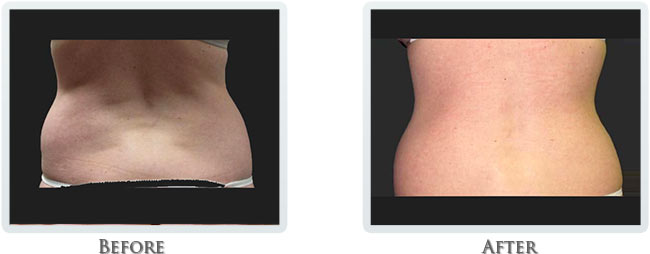 Lift & Tighten Skin Before and After 01