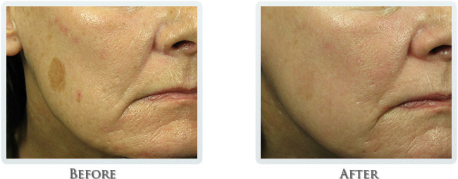 Non Sergical Facelift Before After 02