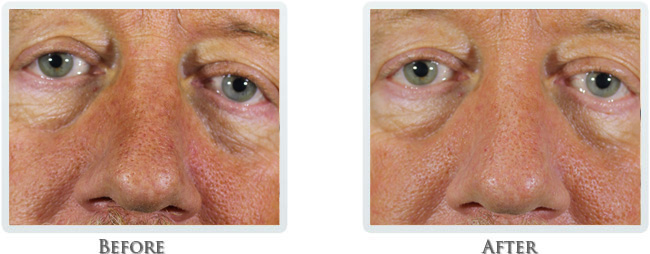 Dermal Fillers PRP Before and After 02