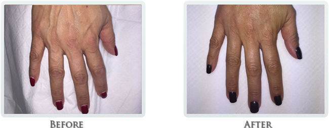 Hand Rejuvenation Before and After 02