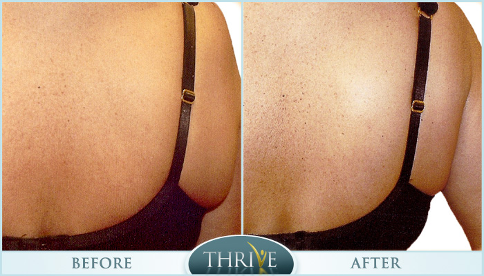 Lift & Tighten Skin Before and After 02