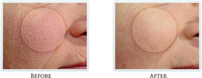 Rosacea & Redness Reduction Before and After 04