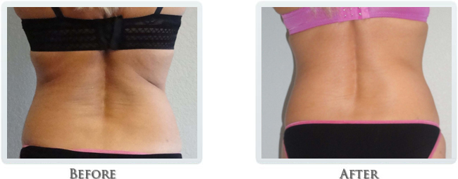 Exilis Before and After 22