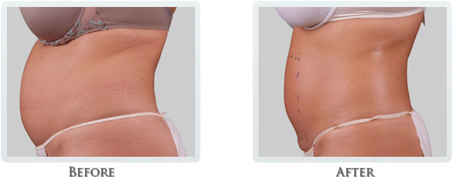 Exilis Before and After 25