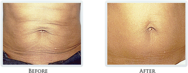 Exilis Before and After 26