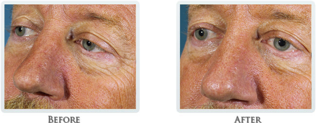 Dermal Fillers PRP Before and After 03