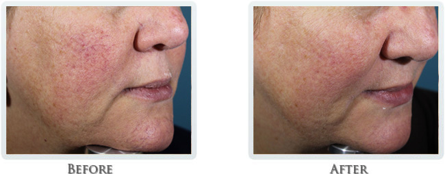 Rosacea & Redness Reduction Before and After 05