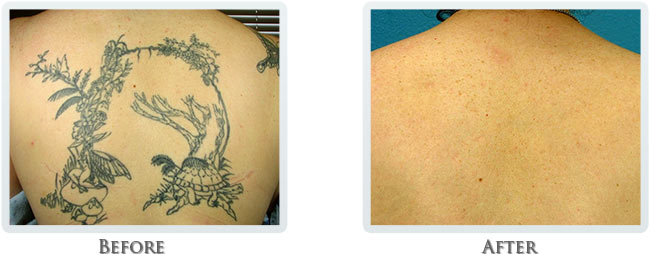 Tattoo Removal Before and After 03