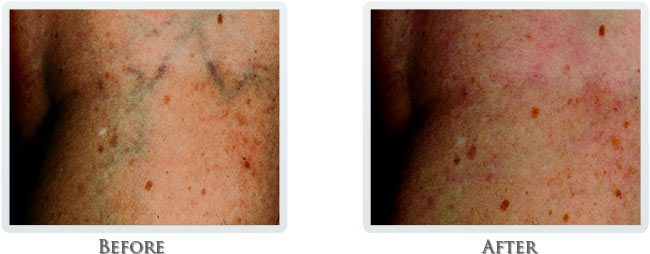 Vascular Before and After 03