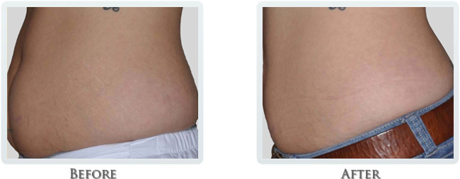 Exilis Before and After 30