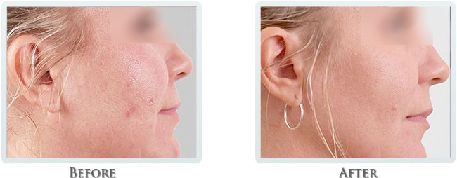 Non Surgical Facelift Before and After 05