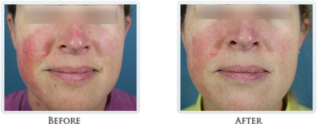 Rosacea & Redness Reduction Before and After 06