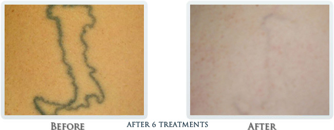 Tattoo Removal Before and After 05