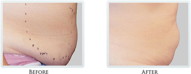 Fat Removal Before and After 06