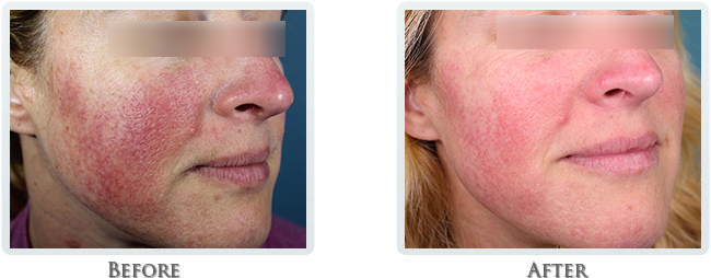 Rosacea & Redness Reduction Before and After 07