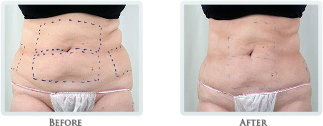 Fat Removal Before and After 07