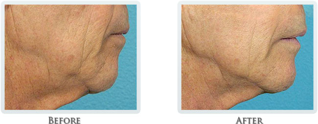 Non Surgical Facelift Before and After 08
