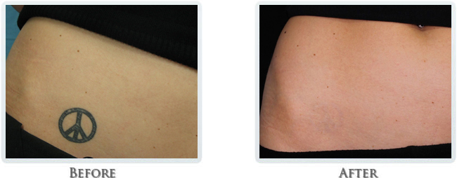 Tattoo Removal Treatments Portland Or Tattoo Removal Cream