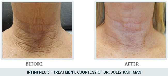 Lift & Tighten Skin Before and After 09