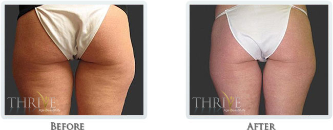 Cellulite Reduction Before and After 02