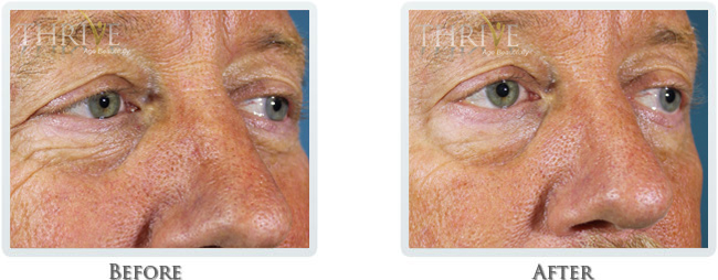Dermal Fillers PRP Before and After 01