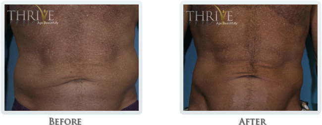 Exilis Before and After 31