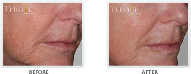 Non Surgical Facelift Before and After 4