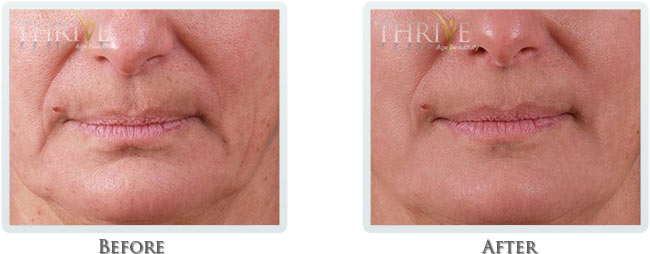 Non Surgical Facelift Before and After 03