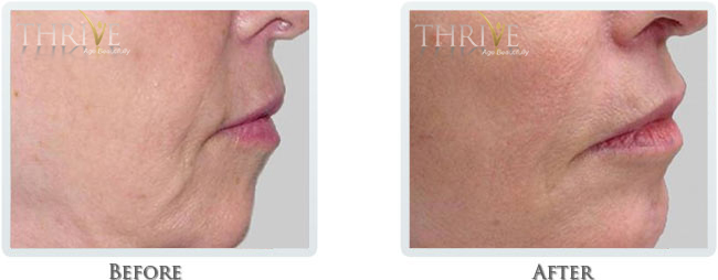 Non Surgical Facelift Before and After 02