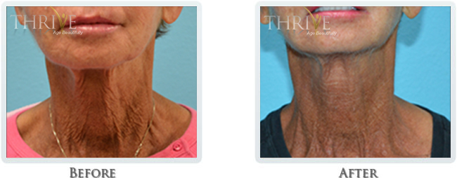 Non Surgical Facelift Before and After 10