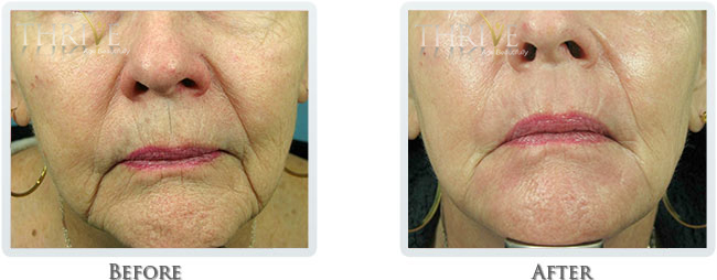 Non Surgical Facelift Before and After 09
