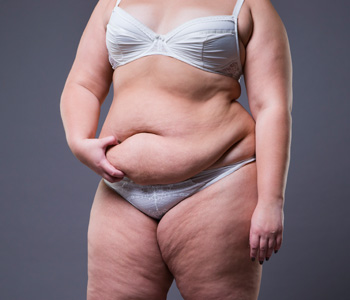 Woman with fat abdomen, overweight female stomach