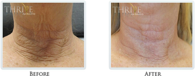 High Intensity Focused Radiofrequency Before and After 19