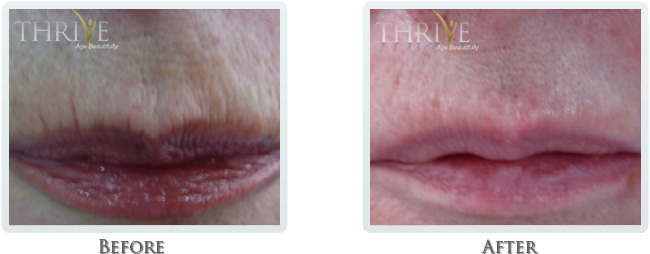 High Intensity Focused Radiofrequency Before and After 10
