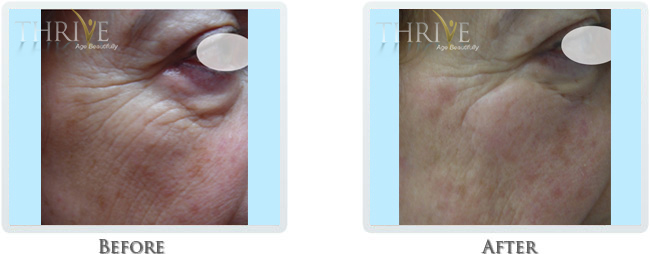 High Intensity Focused Radiofrequency Before and After 09
