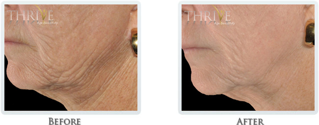High Intensity Focused Radiofrequency Before and After 16