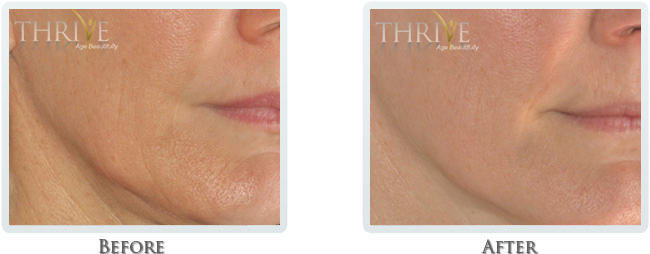 High Intensity Focused Radiofrequency Before and After 15