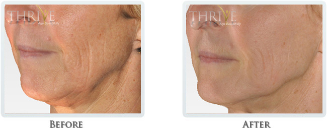 High Intensity Focused Radiofrequency Before and After 14