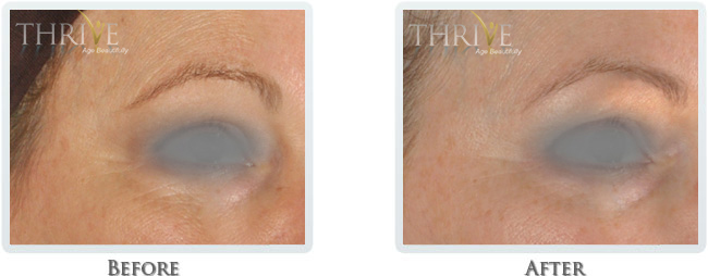 High Intensity Focused Radiofrequency Before and After 13
