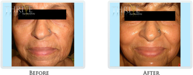 High Intensity Focused Radiofrequency Before and After 11