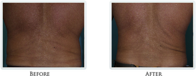 Exilis Before and After 32