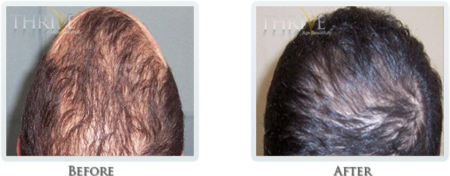 Hair Restoration Before and After 01