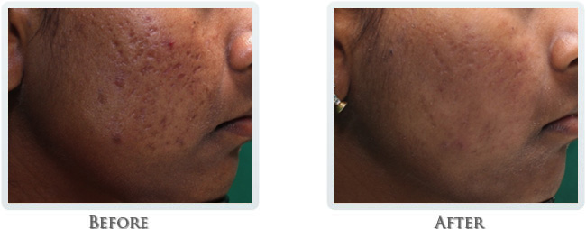 High Intensity Focused Radiofrequency Before and After 12