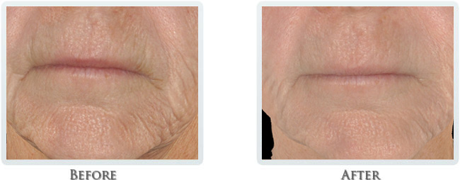 High Intensity Focused Radiofrequency Before and After 17