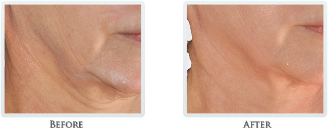 High Intensity Focused Radiofrequency Before and After 18